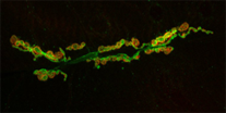 neuromuscular junctions under a microscope