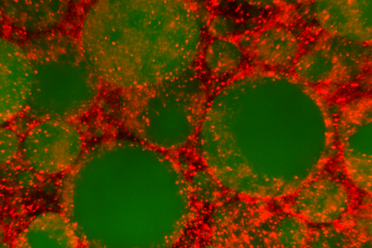 Lipid droplets (in green) and the ALS8-associated protein DVAP (in red) in the fat body (adipose tissue) of the fruit-fly.